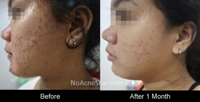Cystic Acne